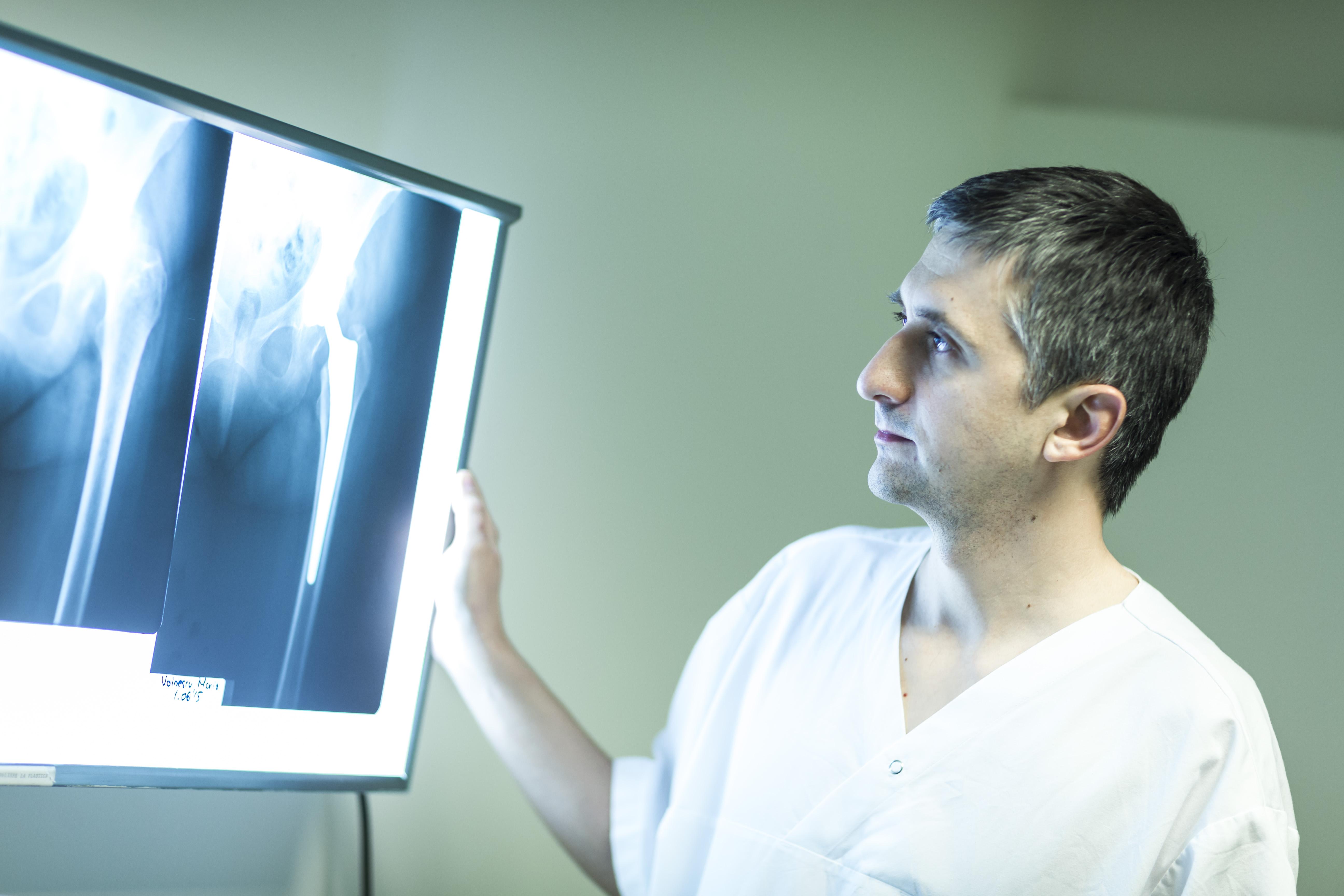 COXARTROZA – Artroza soldului