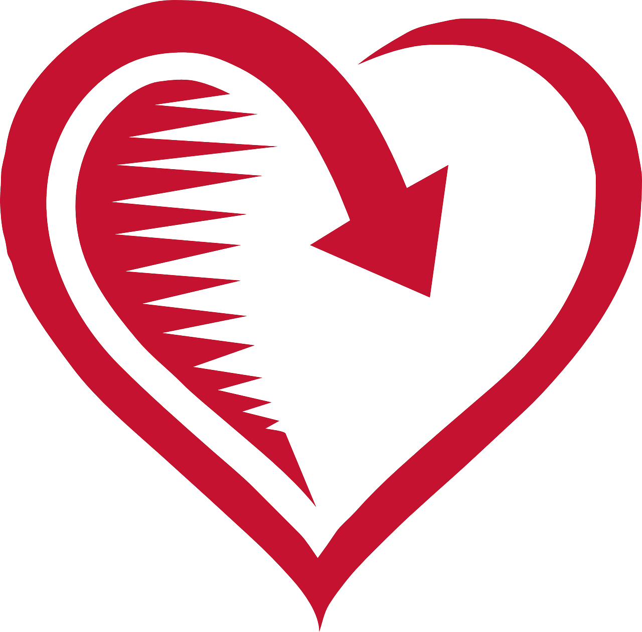 Displazia aritmogena de ventricul drept