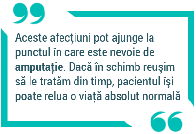 afectiuni-ateroscleroza-amputare-dr-ciobanu