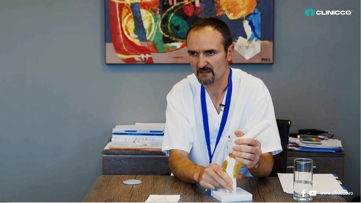 Despre leziunile de ligament încrucișat anterior, cu dr. Ion Loghinescu