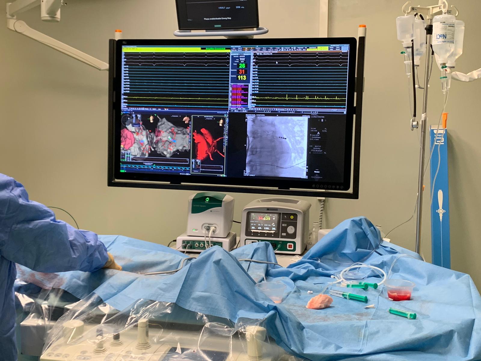 Premieră medicală la Brașov – prima procedură de ablație de aritmie complexă a fost efectuată la CLINICCO